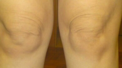 Photo of 5 Steps to tighten loose skin over knees