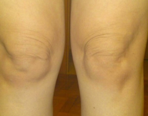 5_tips_to_tighten_loose_skin_over_knees