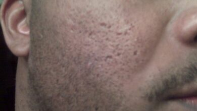 Photo of Acne remedies for black skin