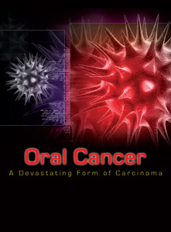 Photo of Oral Cancer
