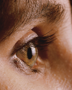 Photo of Upper lid blepharoplasty