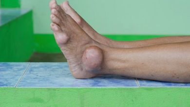 Photo of Gout Diet