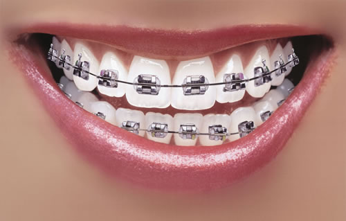 Photo of Braces Don't Have to Be Boring