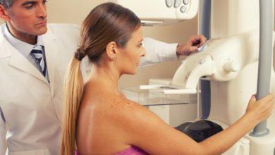 GE hits a deal on mammogram screening