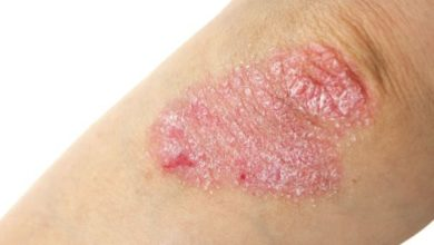 Psoriasis, the skin ailment