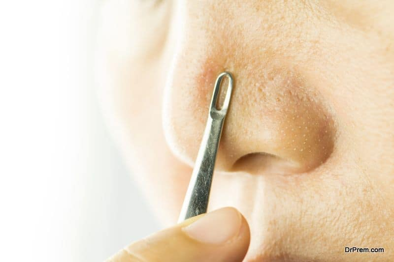 Photo of Understanding the types and benefits of blackhead extractor