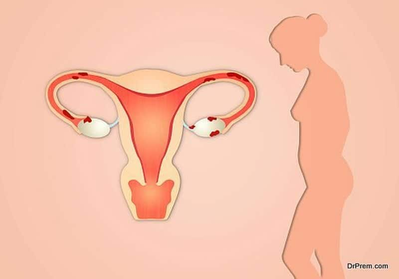 women reproductive health