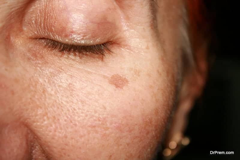 Skin Pigmentation