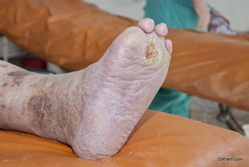 Photo of Why diabetics are prone to infections and need special foot care