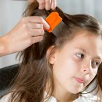 Treating-Head-Lice-Problems