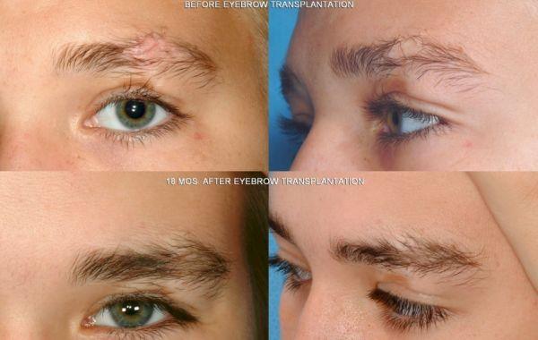 All About Eyebrow Hair Transplant Health Guide By Dr Prem Jagyasi
