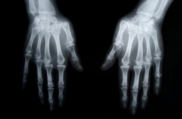 Osteoporosis_hand x-ray