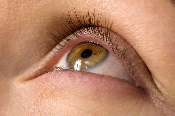 eyelift treatment