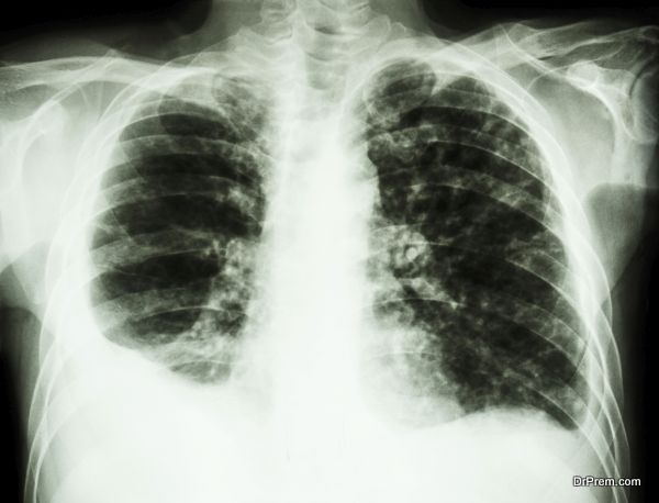 """Pulmonary Tuberculosis"" film chest x-ray : Right pleural effusion and minimal left pleural effusion due to mycobacterium tuberculosis infection"