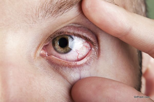 Dry eye syndrome and how you can deal with it