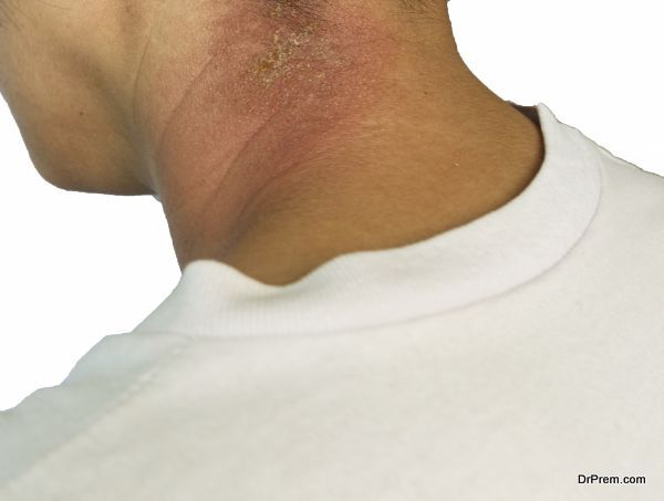 rash on neck isolated on white background