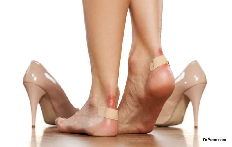 Treating blisters