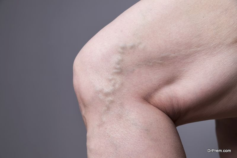 Thread Veins and Varicose Veins
