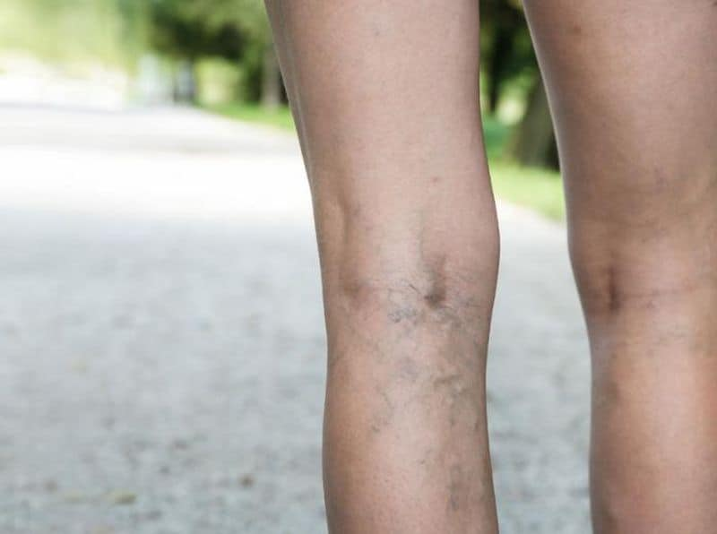 thread-spider-varicose-veins