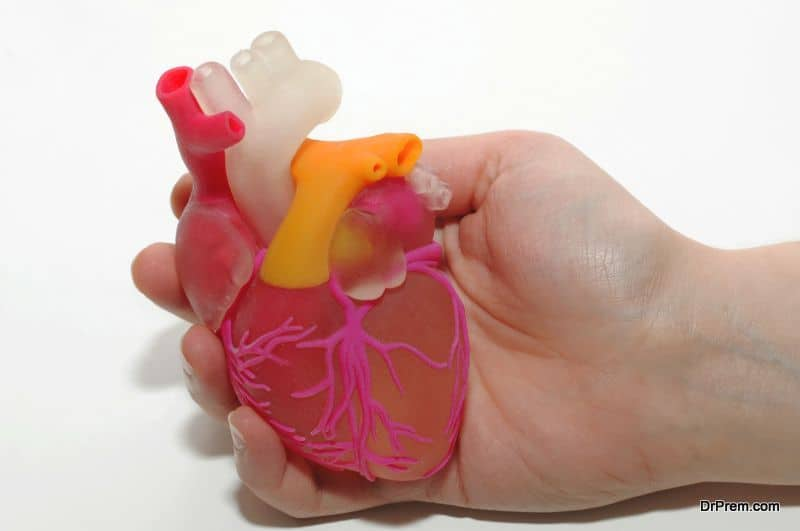 3D printed heart implant