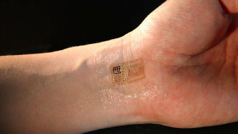 Electronic skin leapfrogs biomedicine