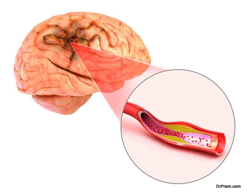 Brain-Stethoscope-For-Silent-Seizures