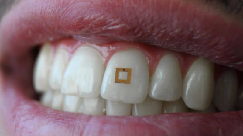 Teeth-Mounted-Sensors