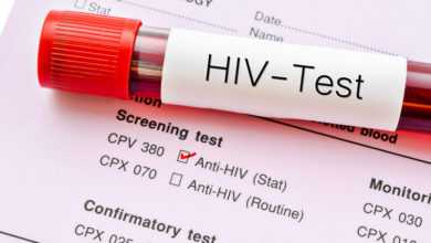 How-to-deal-with-HIV