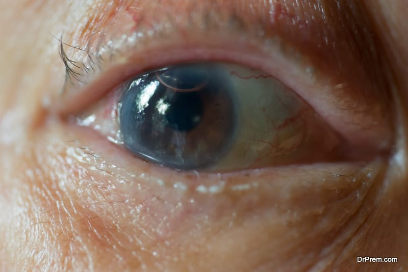 Misshapen cornea