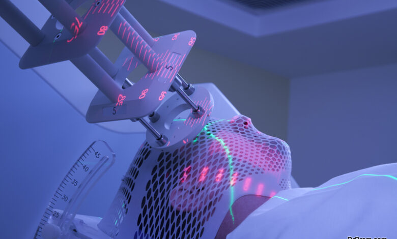 Brachytherapy also known as sealed source radiotherapy or endocurietherapy