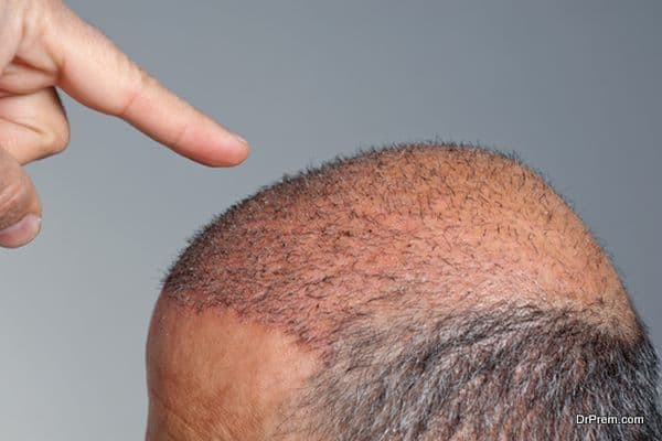 Photo of Turkish medical tourism industry reaping dividends from hair implant procedures