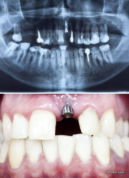 A macro shot of dental implant in the oral cavity and its Panoramic dental X-Ray
