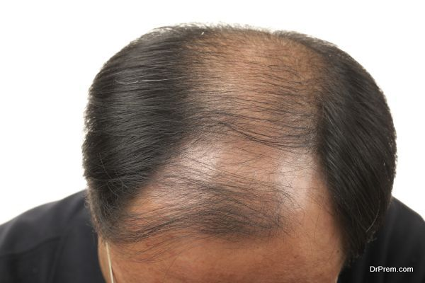 Turkey hair-transplant procedures (6)