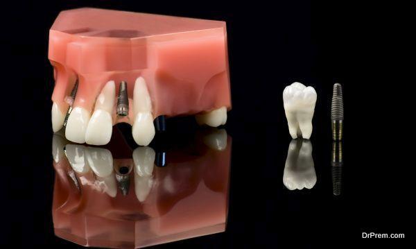 Real Human Wisdom tooth, Dental Titanium Implant and Plastic teeth model