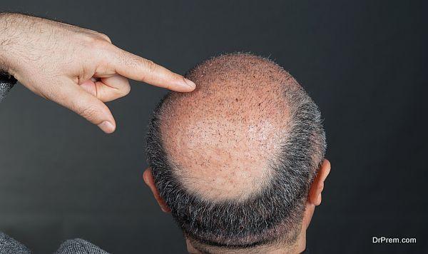 Hair Transplant destinations (8)