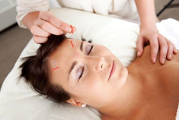 Cosmetic Acupuncture (2)