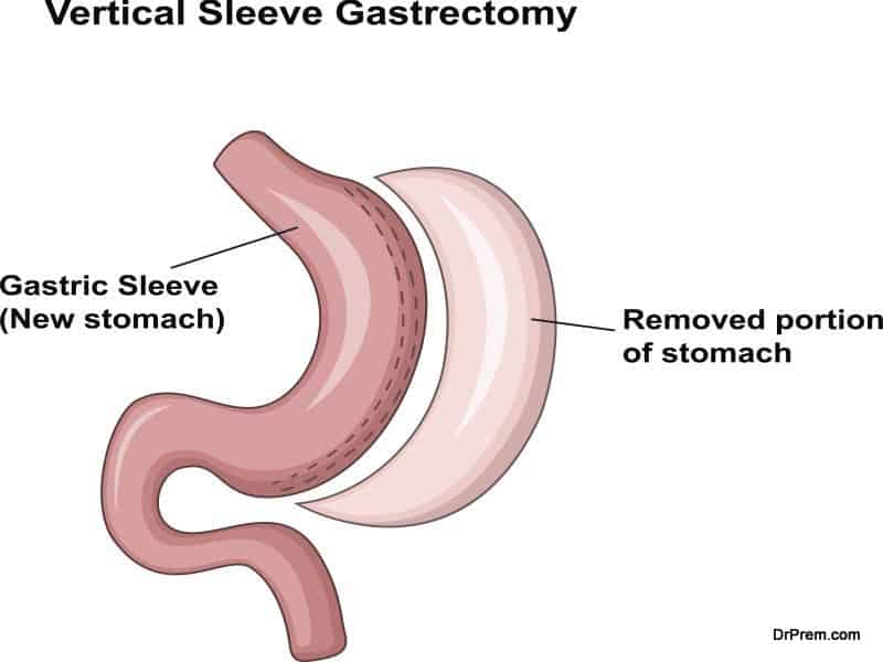 Global bariatric surgery