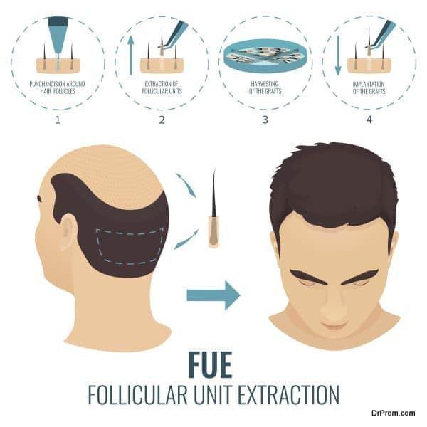 FUE hair loss treatment