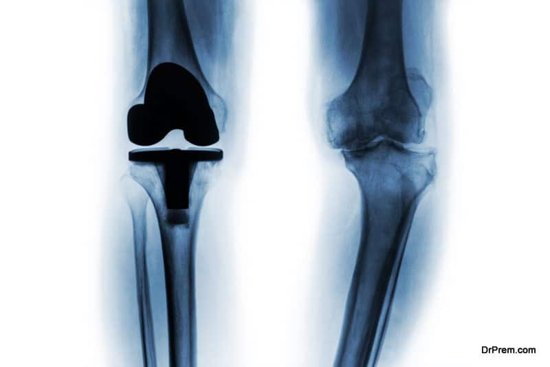 Knee-Replacement-Implant