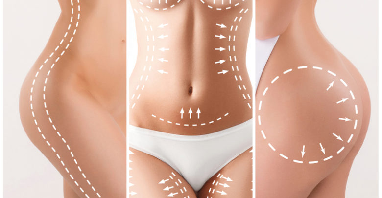 Liposuction in Mexico: Why Even Consider It?