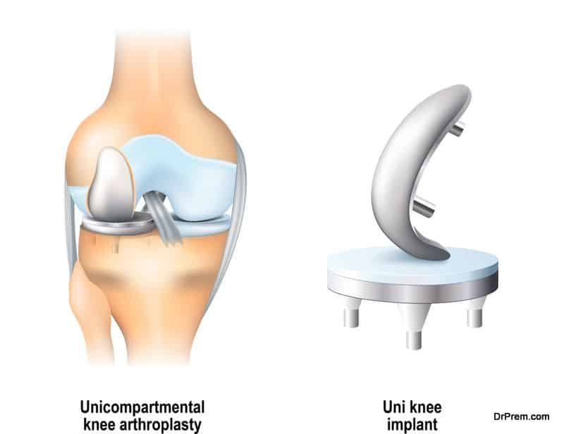 knee-replacement procedure