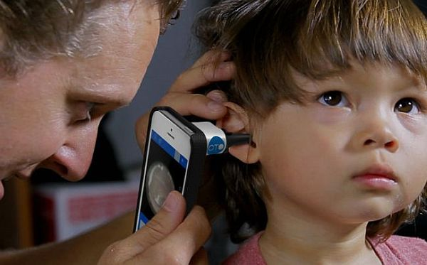 Cellscope for ear infections