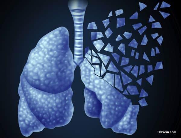 Lung Illness