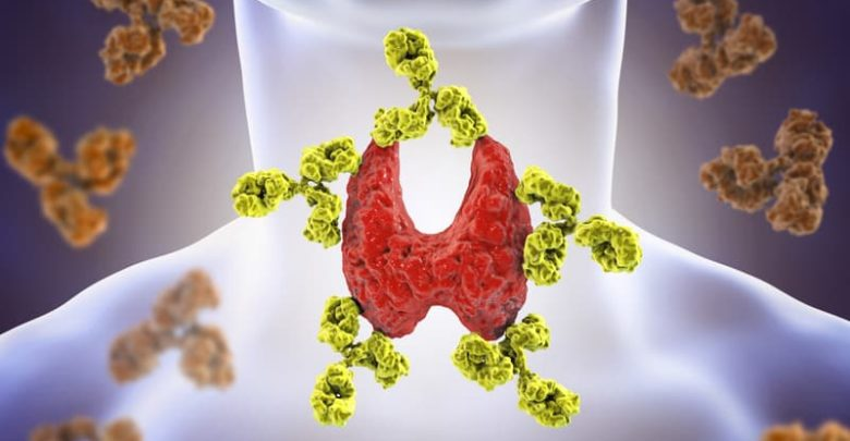 dissolve thyroid nodules naturally