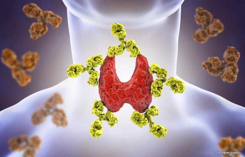 dissolve thyroid nodules naturally