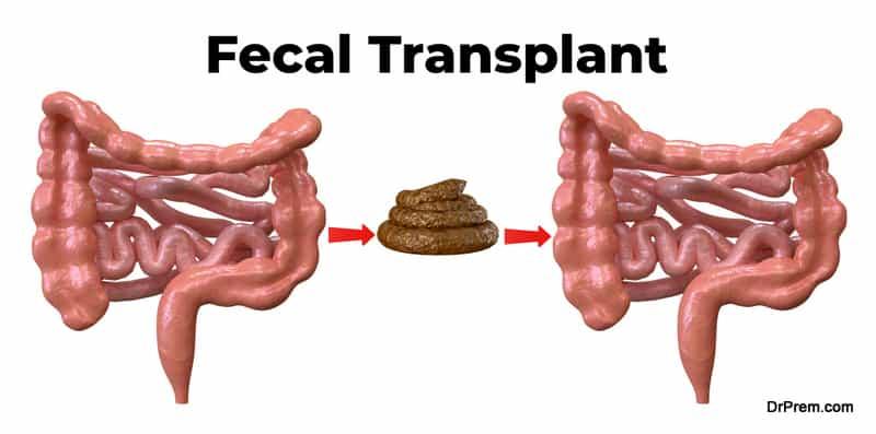 Fecal-Transplant
