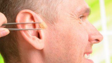 Ear seeding gaining popularity