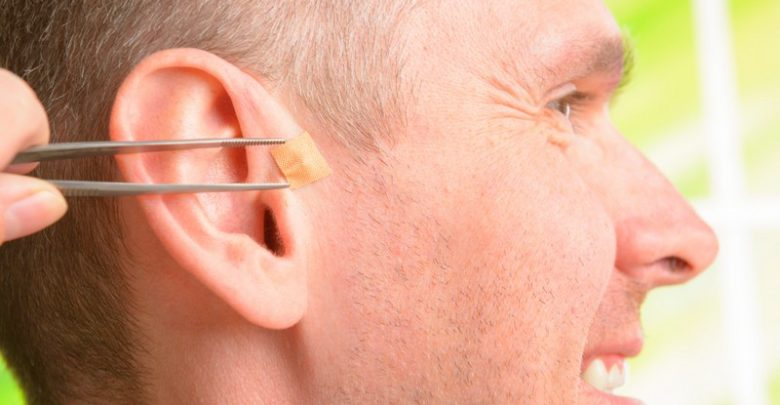Ear seeding gaining popularity