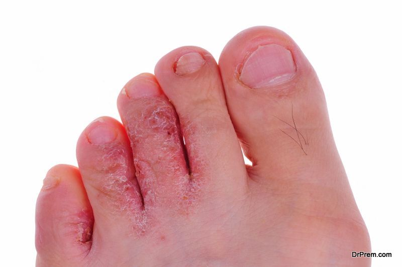 fungal infection of foot