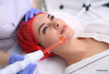 Microneedling skin treatment